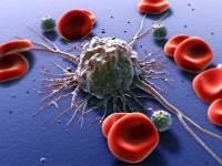 بیشتر موارد ابتلای به سرطان نتیجه بد شانسی است