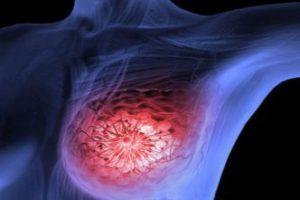 شاید برخی انواع سرطان پستان نیازی به شیمی درمانی نداشته باشد